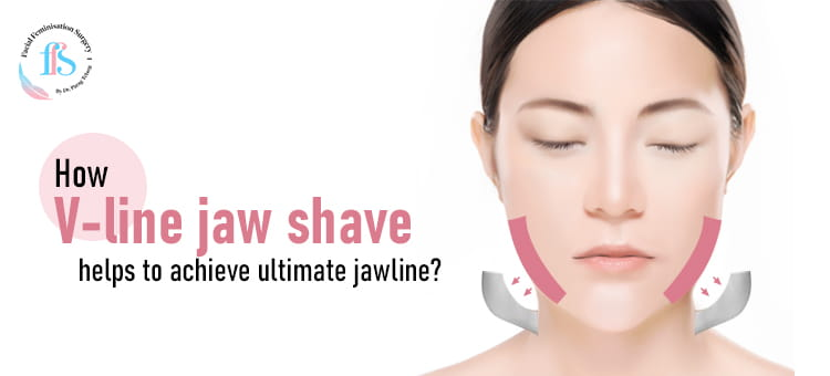How V-line jaw shave helps to achieve ultimate jawline?